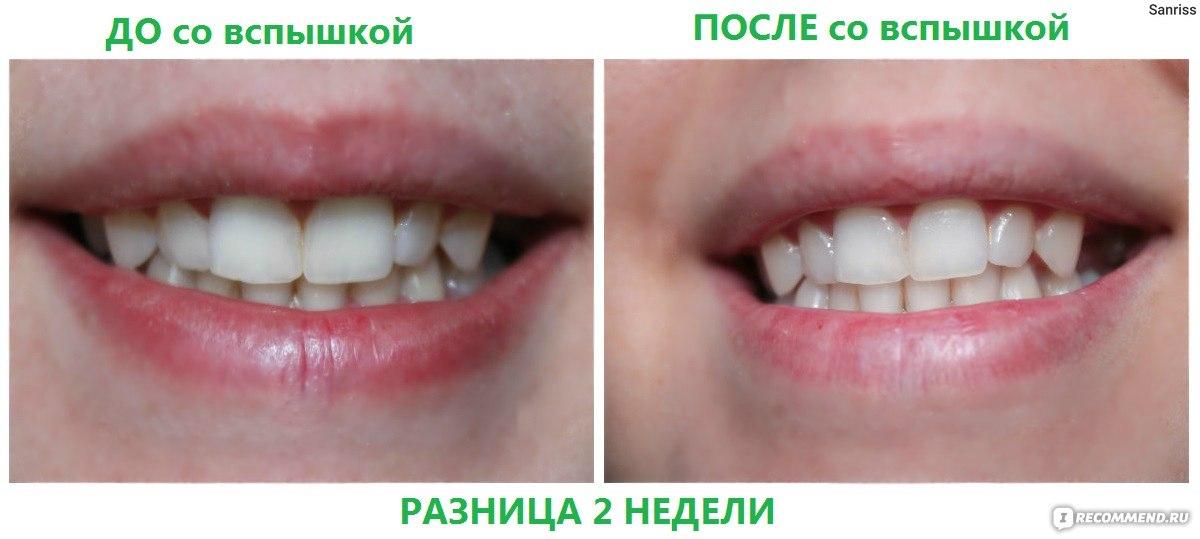 Как отбелить зубы зубным порошком