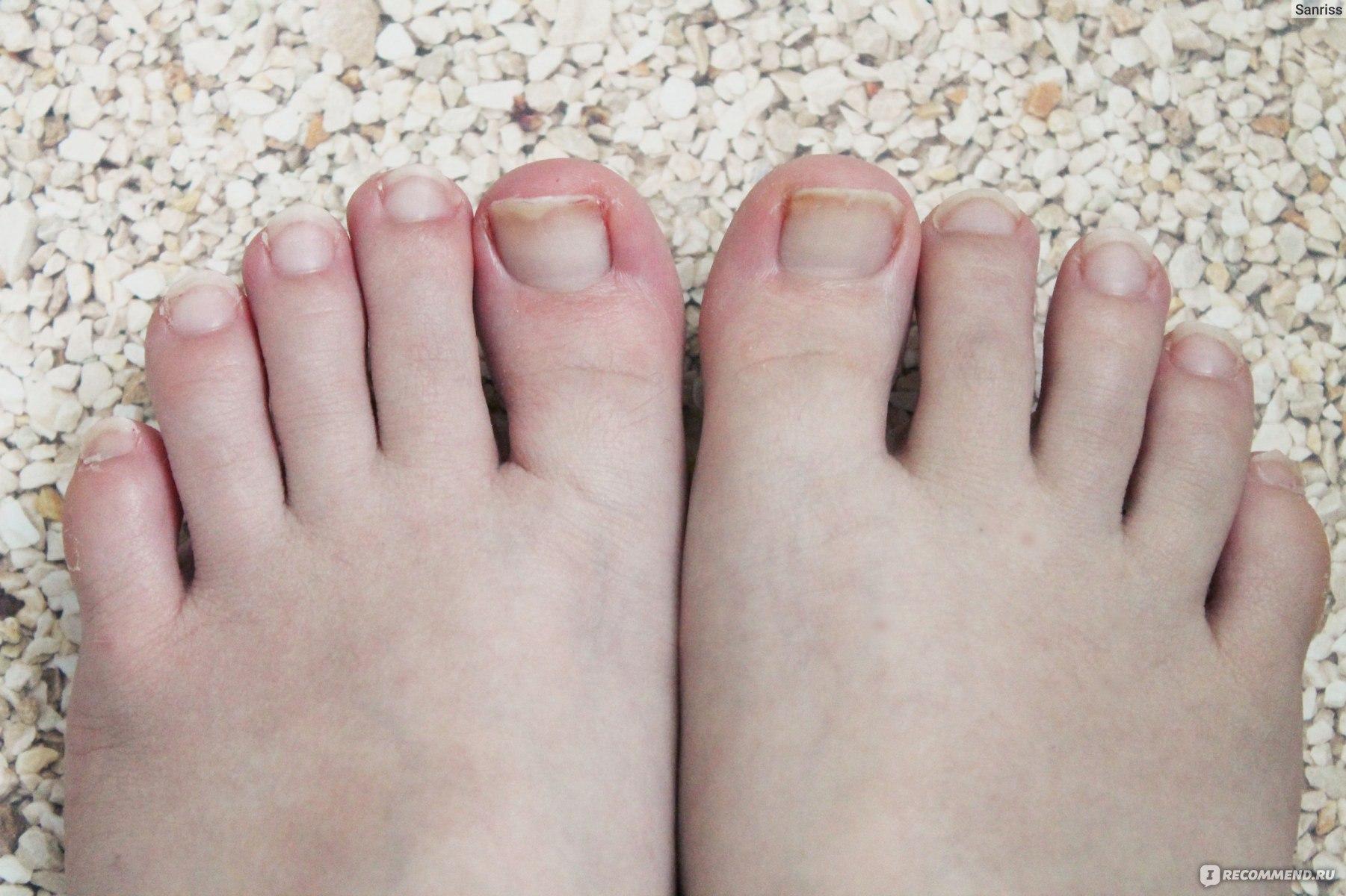 Почему на ногах толстеют ногти