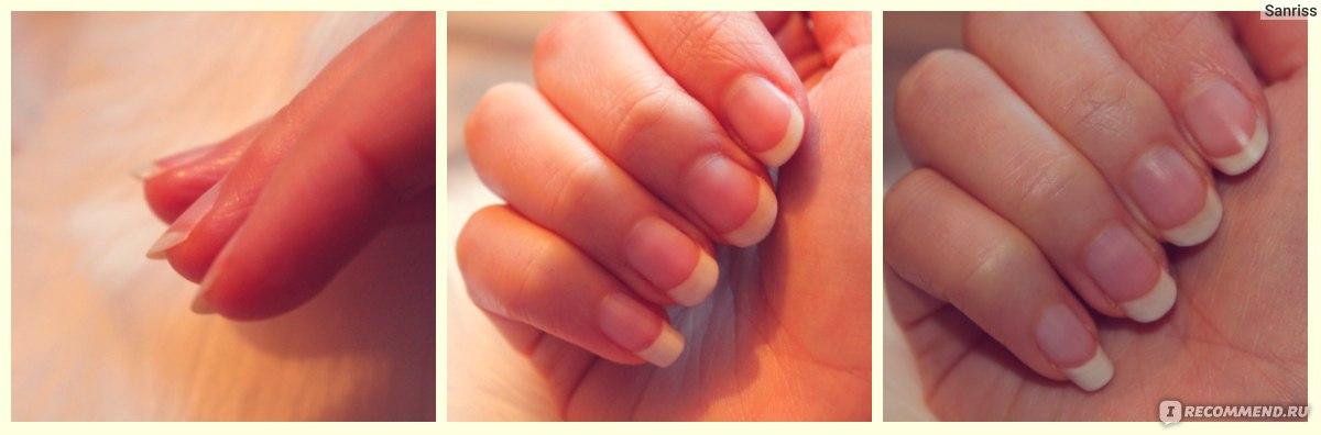 Как отрастить ногти в домашних условиях за 7 дней 915