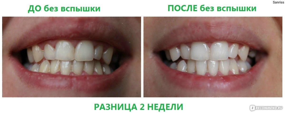 можно ли отбелить зубы подростку