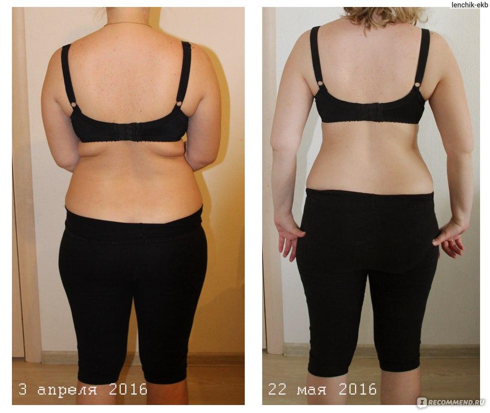 Сиофор Фото До И После Похудения. Все диеты мира