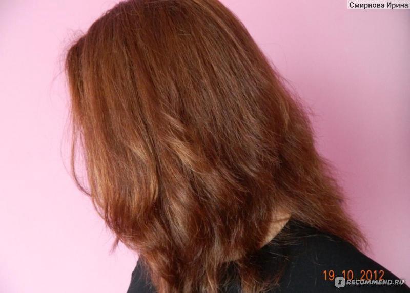 Почему выпадают волосы у женщин: причины выпадения и ...