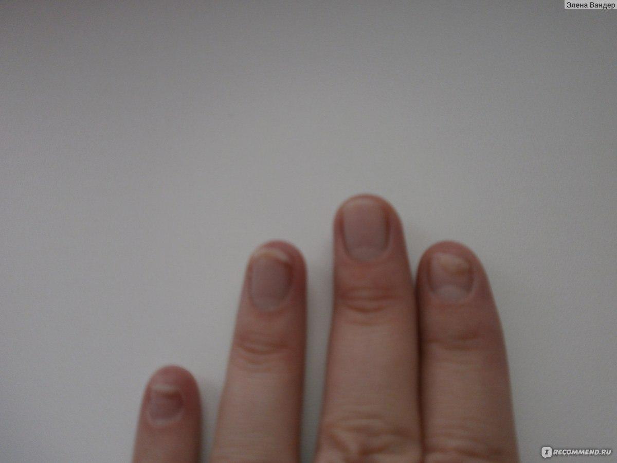 Лак от грибка ногтей при грудном вскармливании