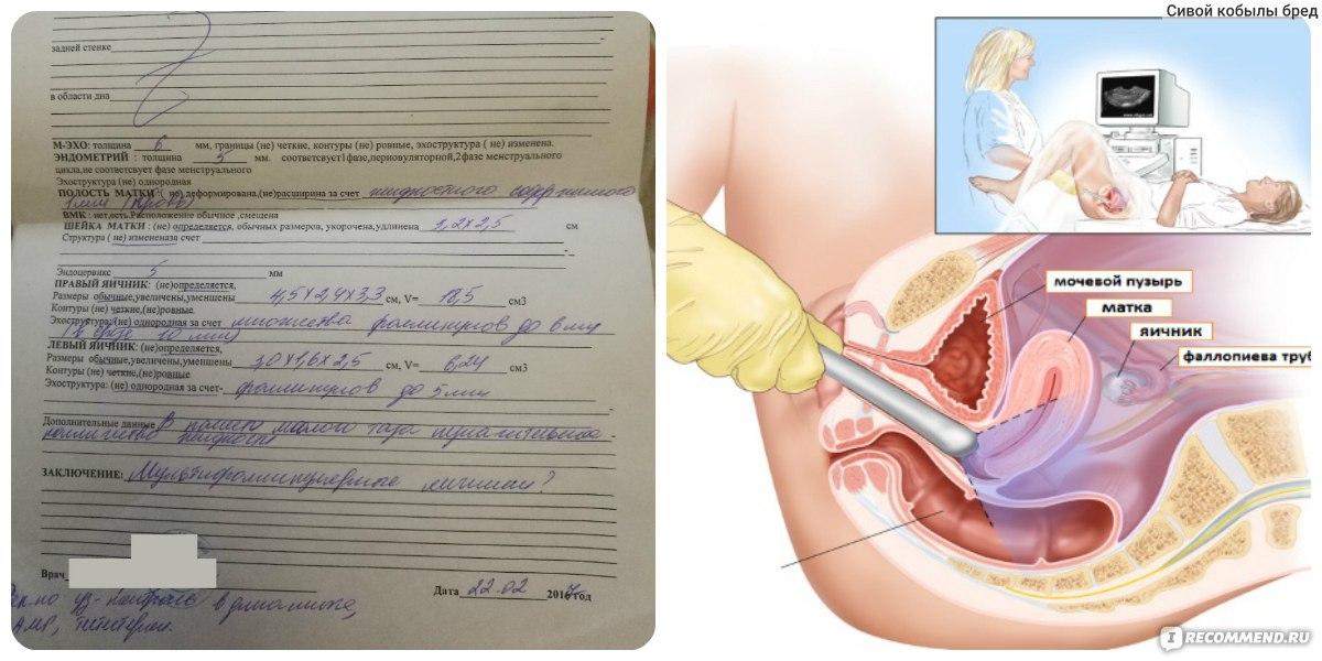 Не опасно ли узи вагинальным датчиком в ранние сроки