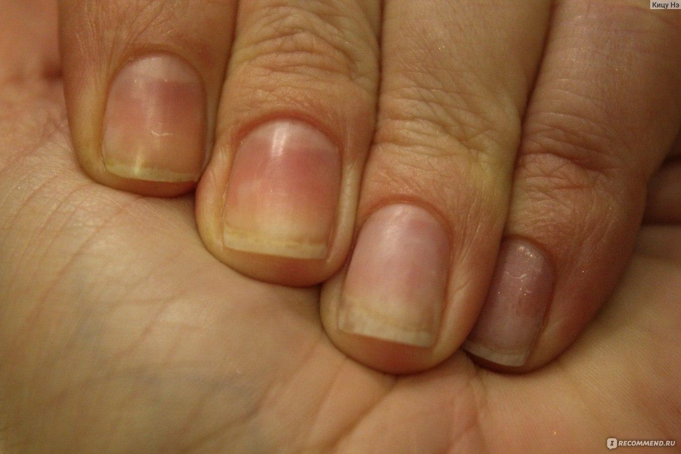 Чем быстро восстановить ногти после наращивания в домашних условиях 270