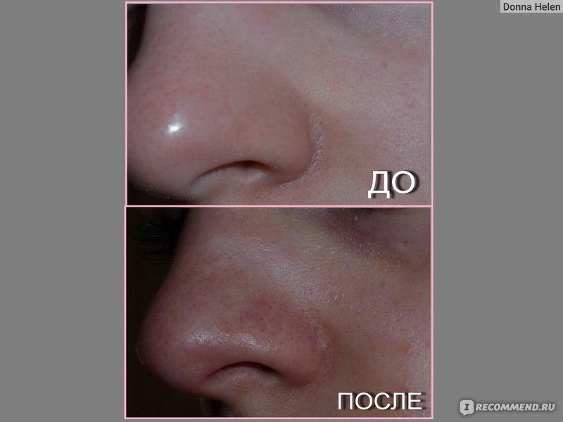 Кефир для проблемной кожи лица отзывы