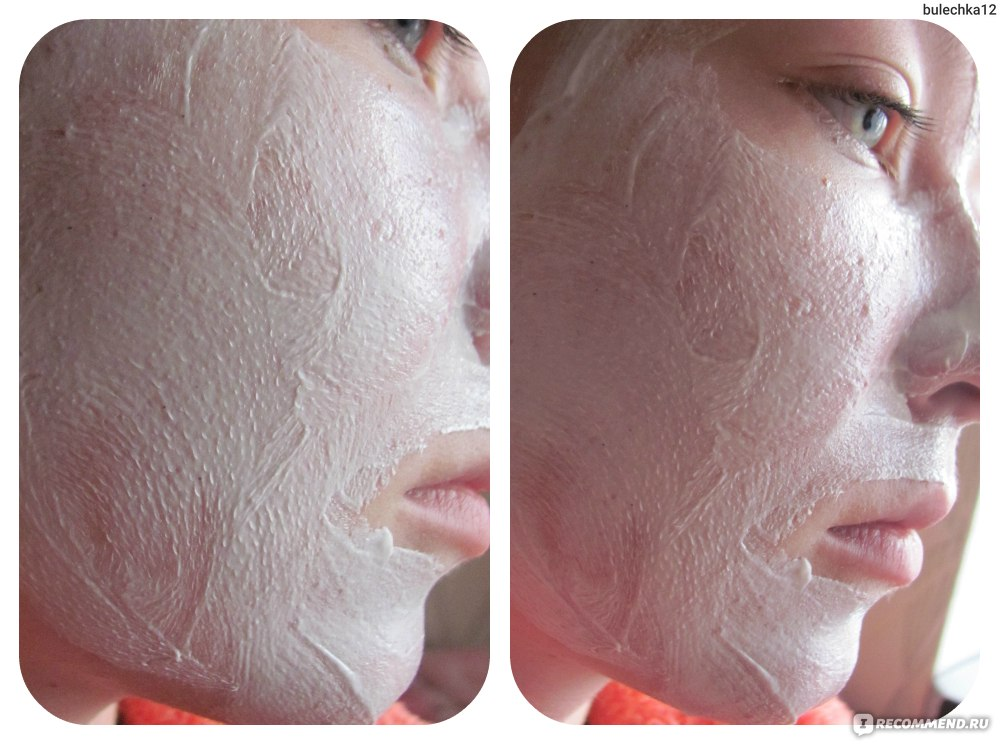 Как сделать кожу ровной и красивой кожи 991