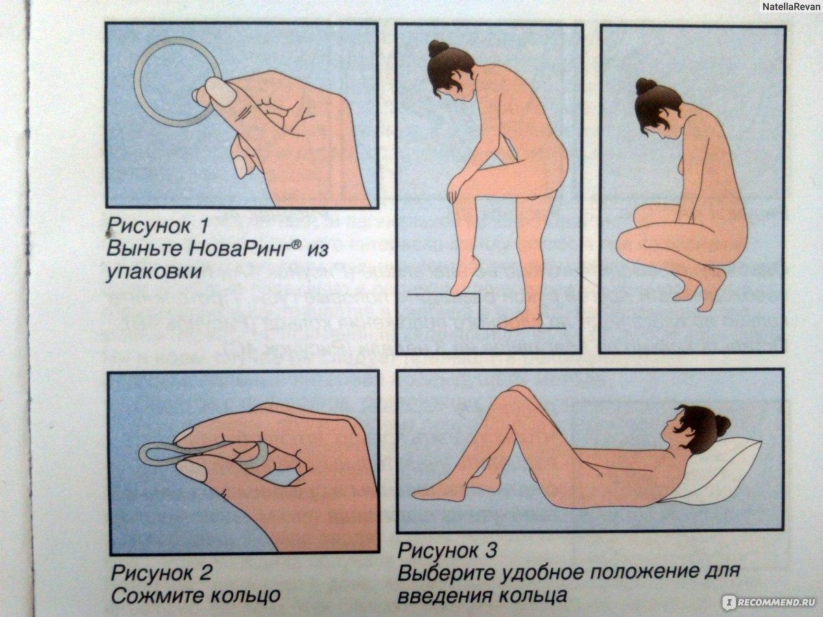seks-posle-ustanovki-spirali