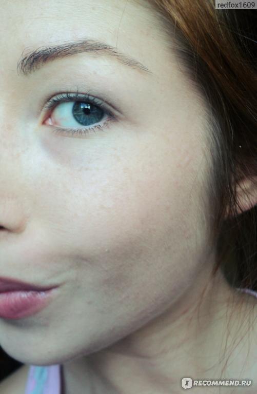 Чистка лица пигментации