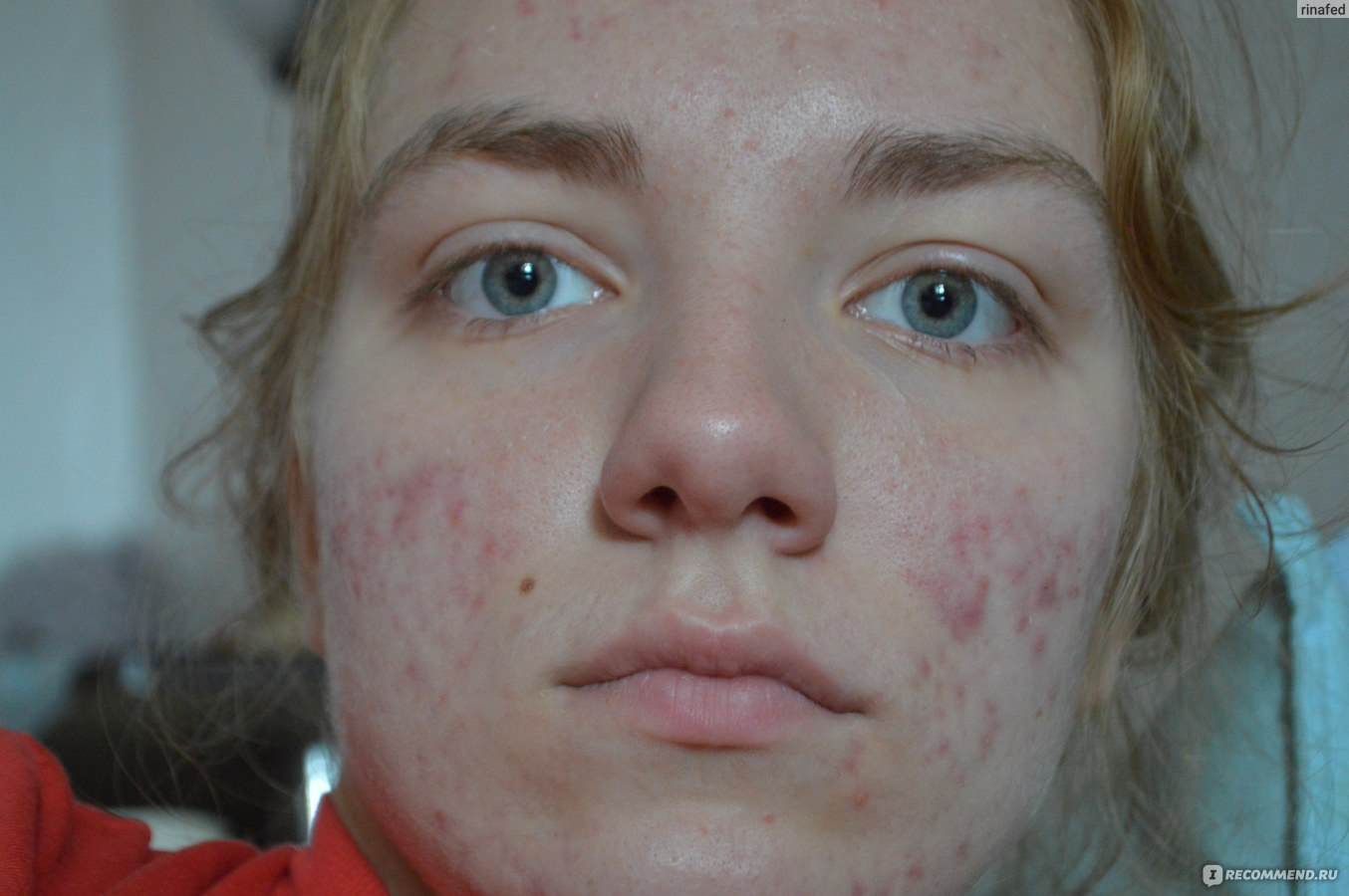 Difference Between Accutane And Roaccutane