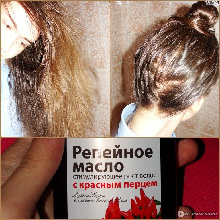 Как сделать чтобы вырастить волосы 143