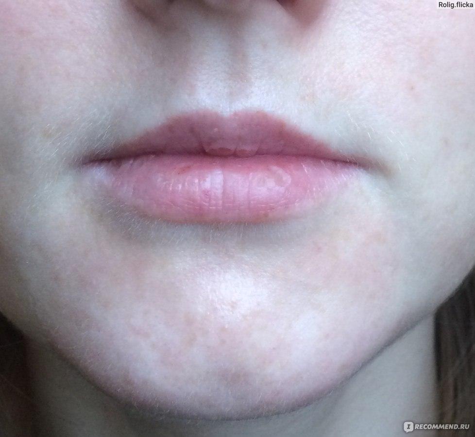 Пигментные пятна на лице как избавиться у косметолога