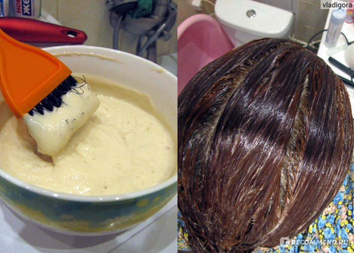 Алерана витамины для роста волос для мужчин