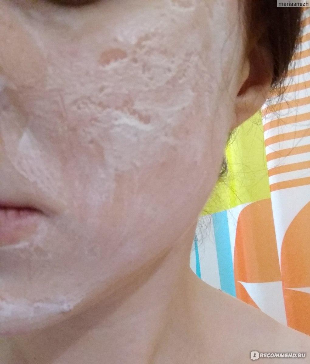 Атравматическая чистка кожи лица holy land, цена, отзывы, преимущества и недостатки