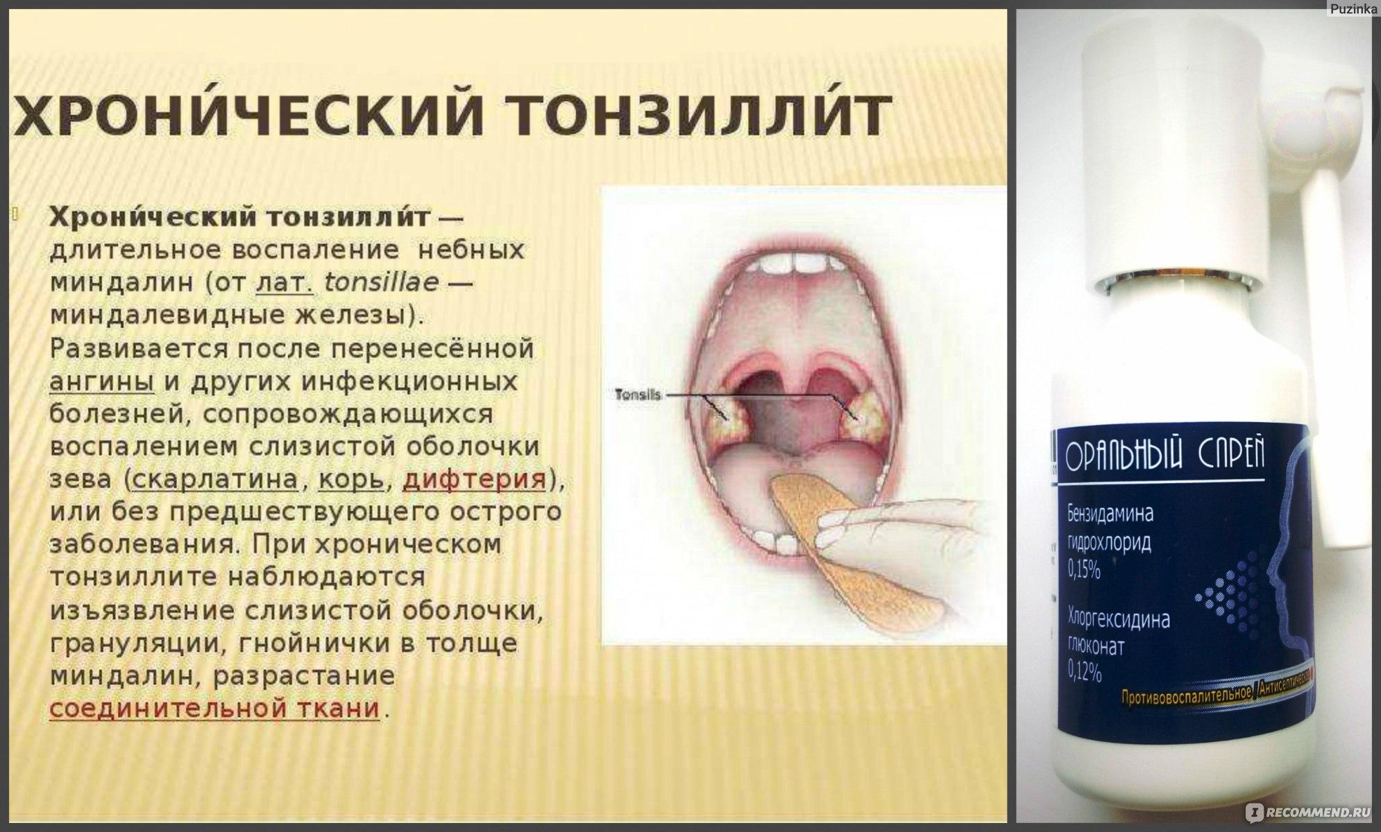 Хронический тонзиллит лечить при домашних условиях 178