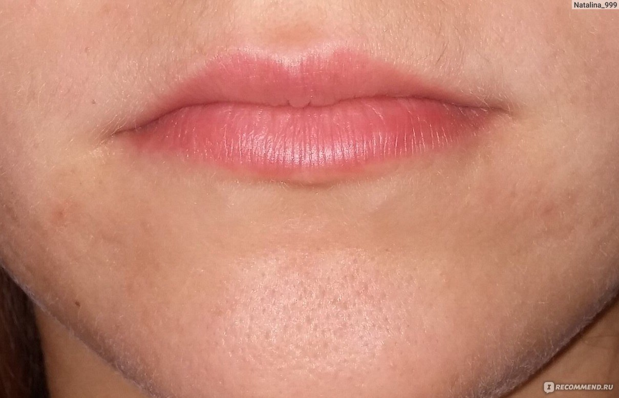 Увеличение губ Juvederm - «Увеличение губ Juvederm Ultra