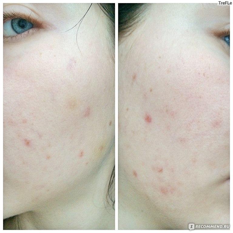 аллергия на клетчатку симптомы
