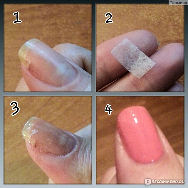 Как приклеить сломанный ноготь в домашних условиях