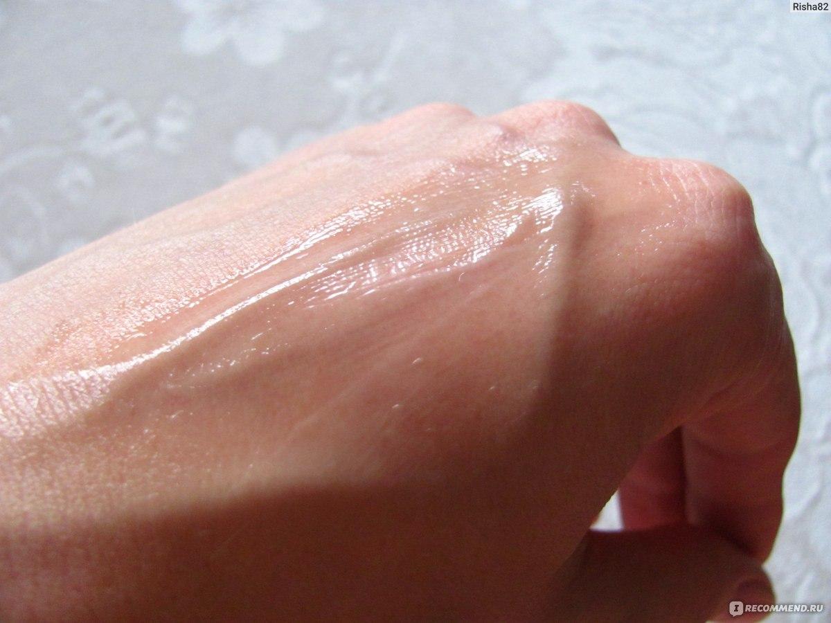 Проблемная кожа лица причины и лечение