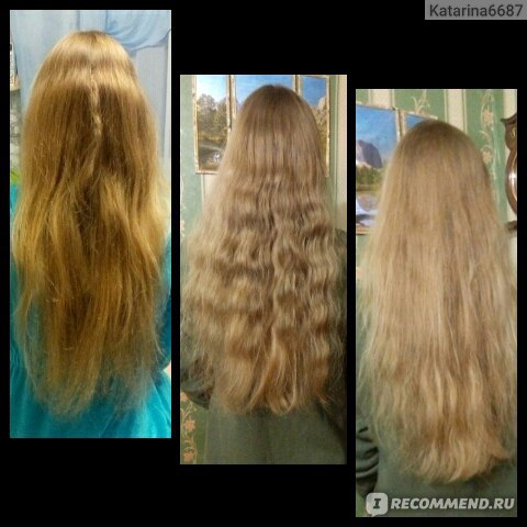 Выпадение волос из-за миндалин