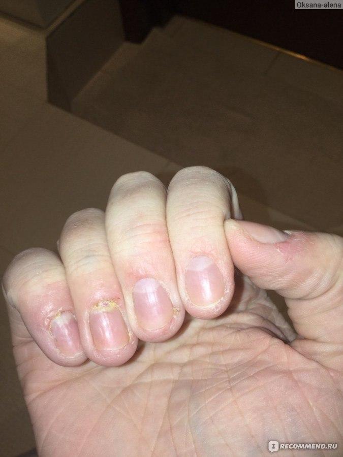 Гидроперит при грибке ногтей