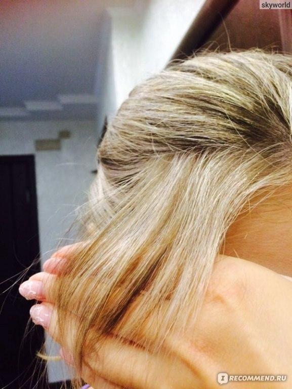 Почему не растут волосы на бровях