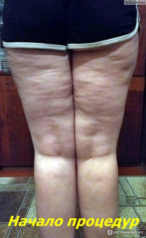 массаж банками для похудения отзывы