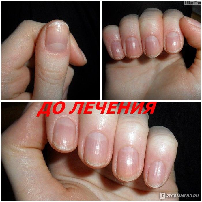 Как сделать чтобы быстро росли ногти за неделю 537