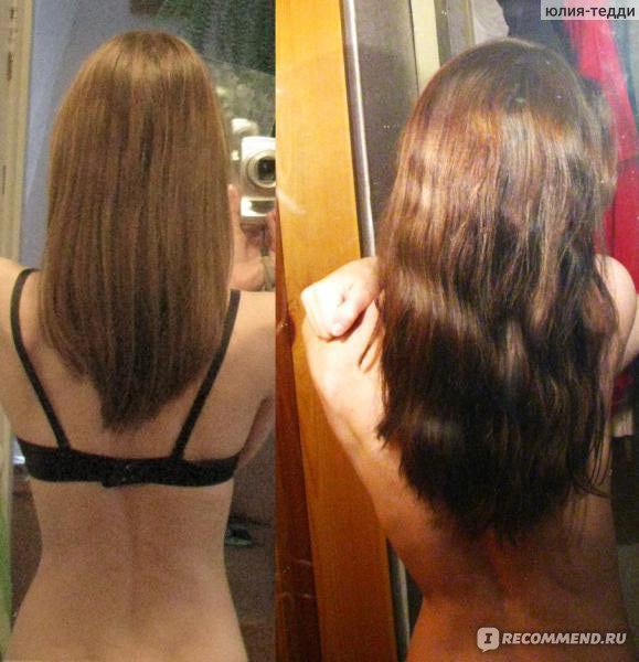 Масла замедляющие рост волос на лице