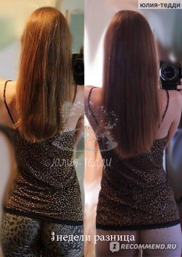 Выпадение волос во время