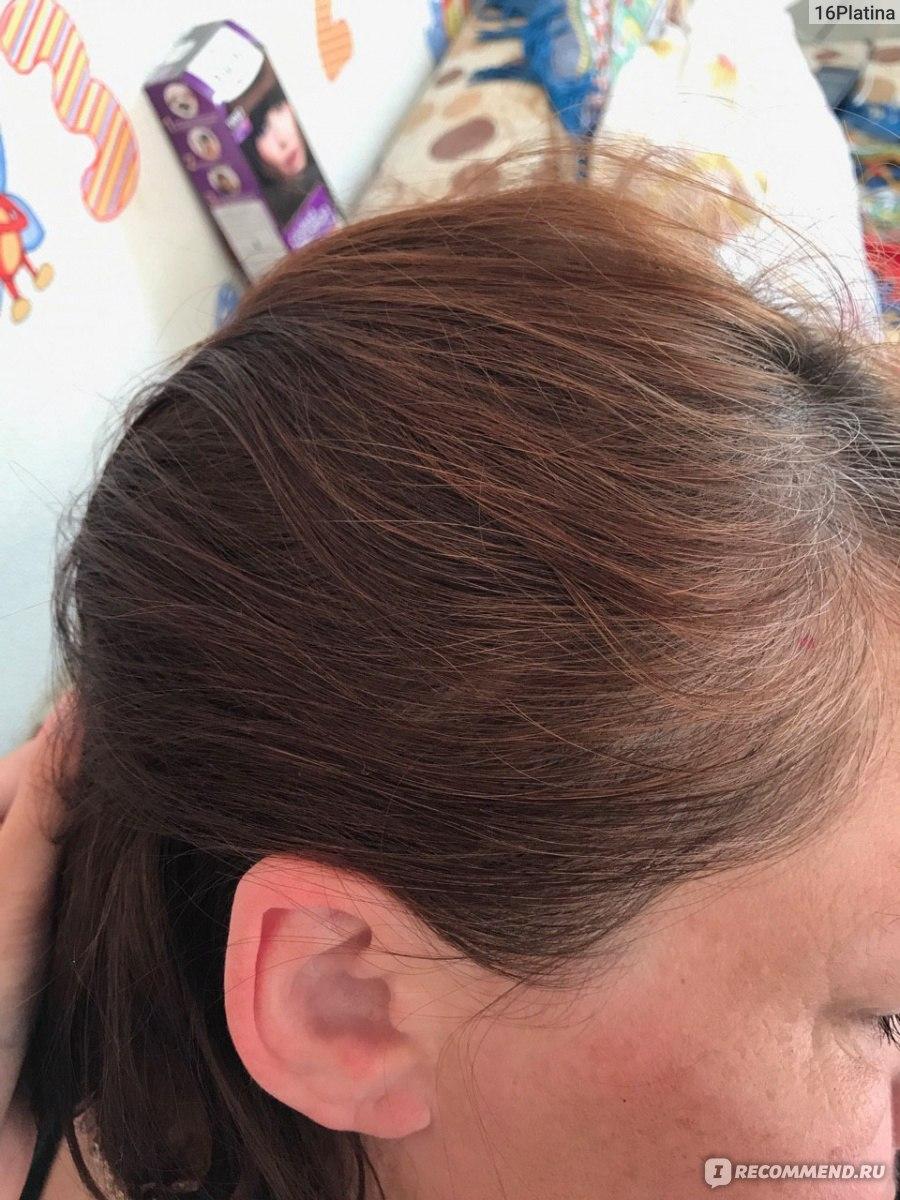Прически на средние волосы своими руками с одной резинкой