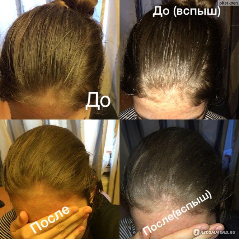 Эссенциале форте для волос маски отзывы