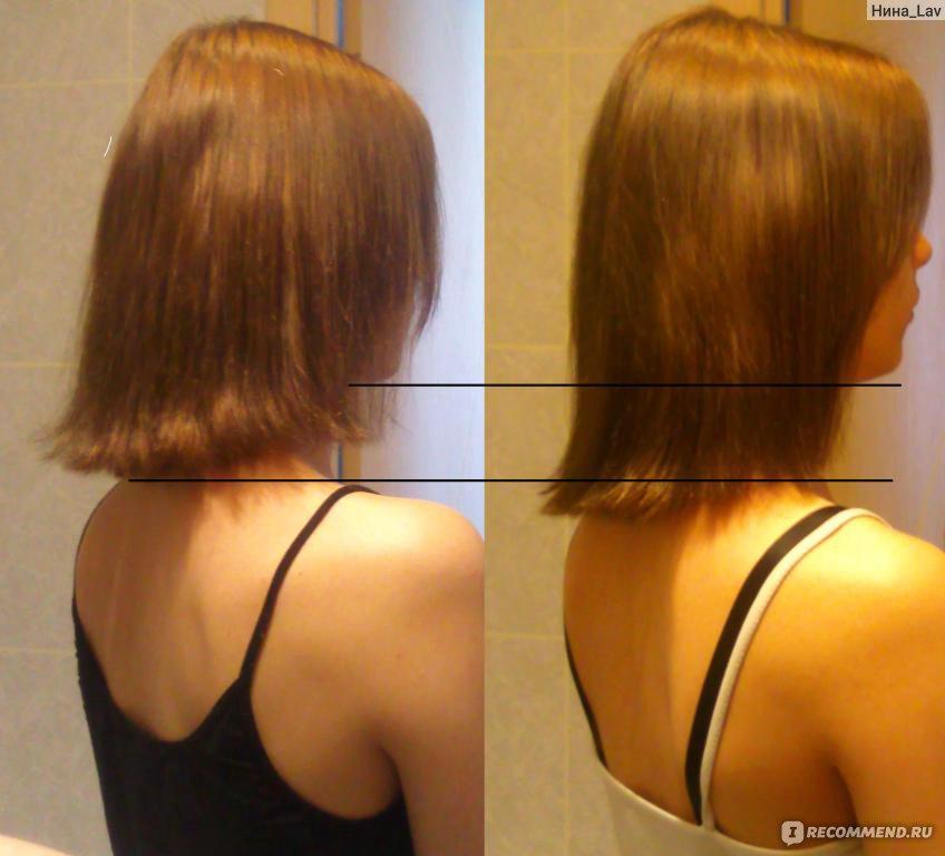 Выпадение волос нарушение гормональное