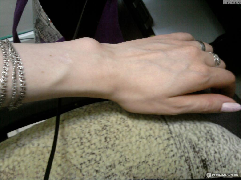 Что делать чтобы вены не выпирали на руках