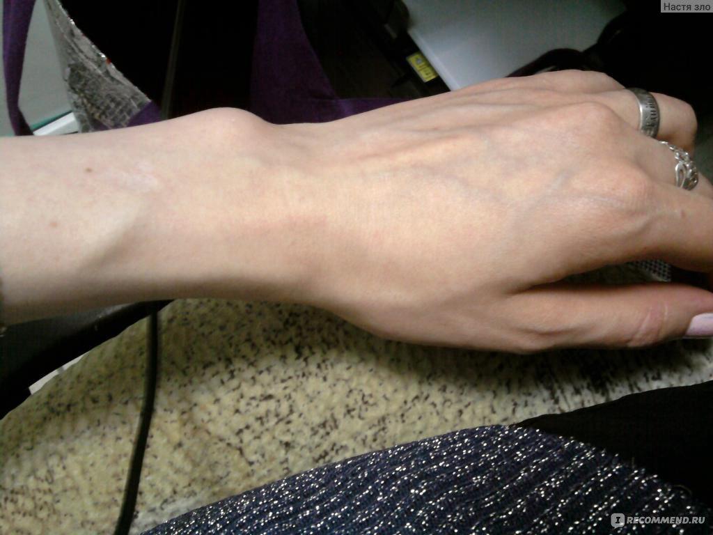 Расширение вен малого таза у женщин симптомы