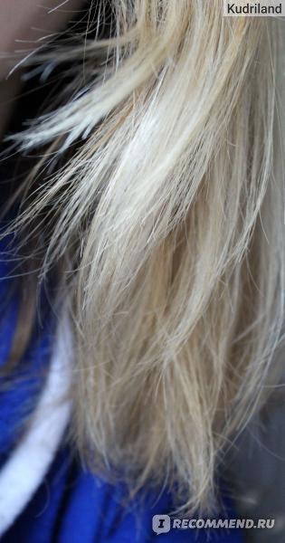 Сколько стоит пересадка волос в омске
