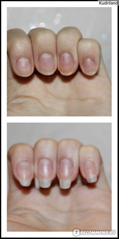 Как быстро отрастить ногти дома за 2 недели