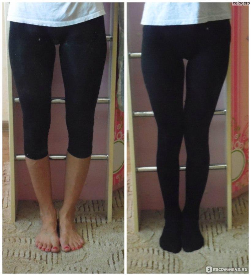 Как сделать прямые ноги из кривых ног