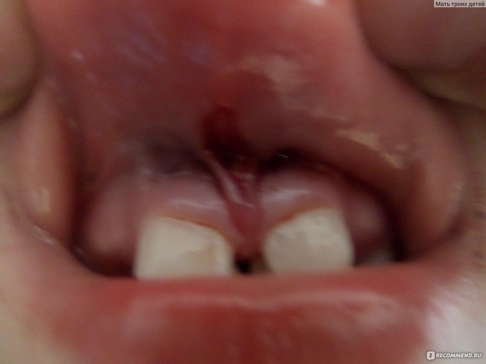 Короткая уздечка у ребенка языка и верхней губы: как определить и лечить
