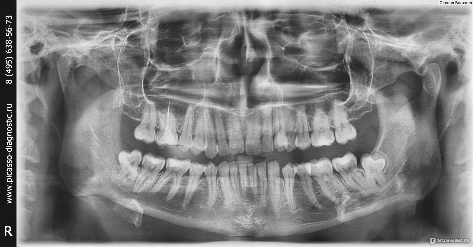 Зуб врос в челюстной сустав значительная часть ручного труда автоматизирована облегчен быт и суставные боли
