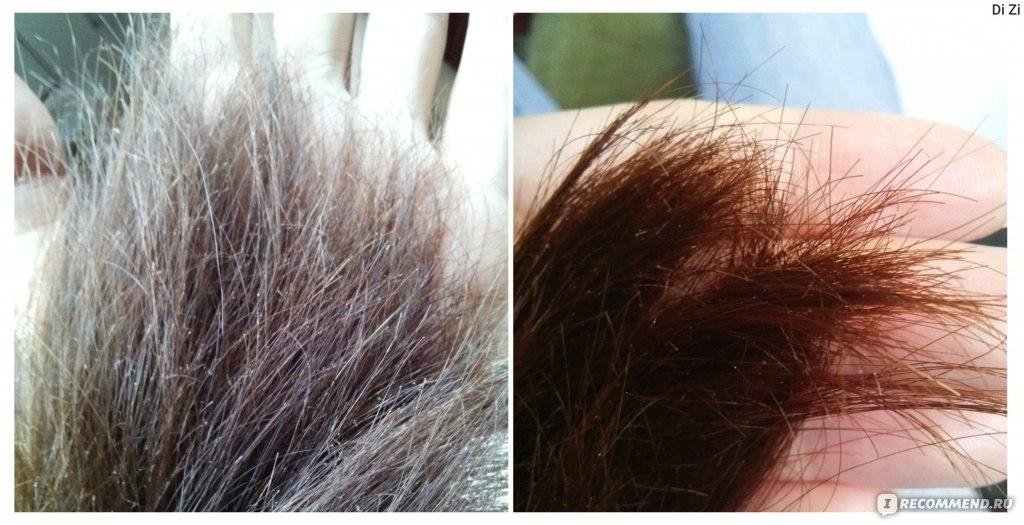 Что от ломкости и сечения волосы в домашних условиях 825