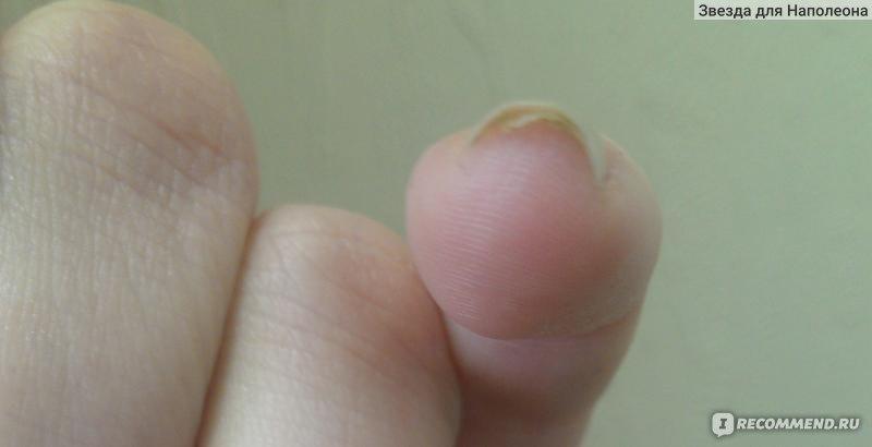 Лечит ли акридерм грибок ногтей