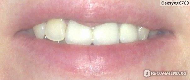 виниры на 4 передних зуба фото