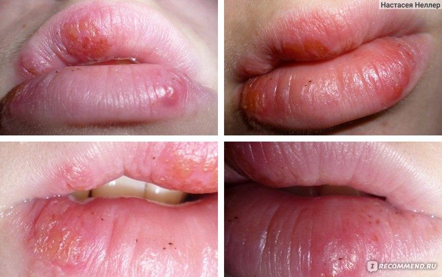 Как выдавить герпес на губе