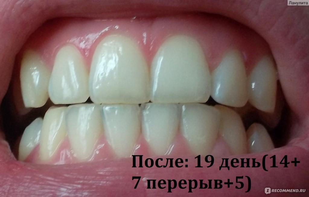 white glo отбеливание зубов