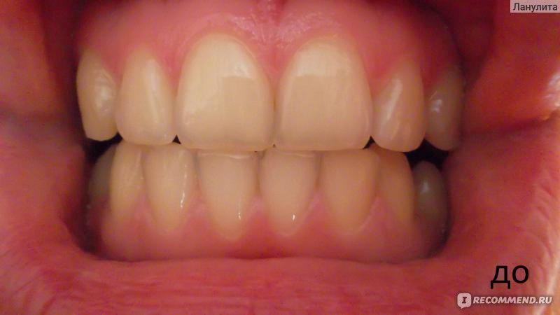 недостатки отбеливания зубов