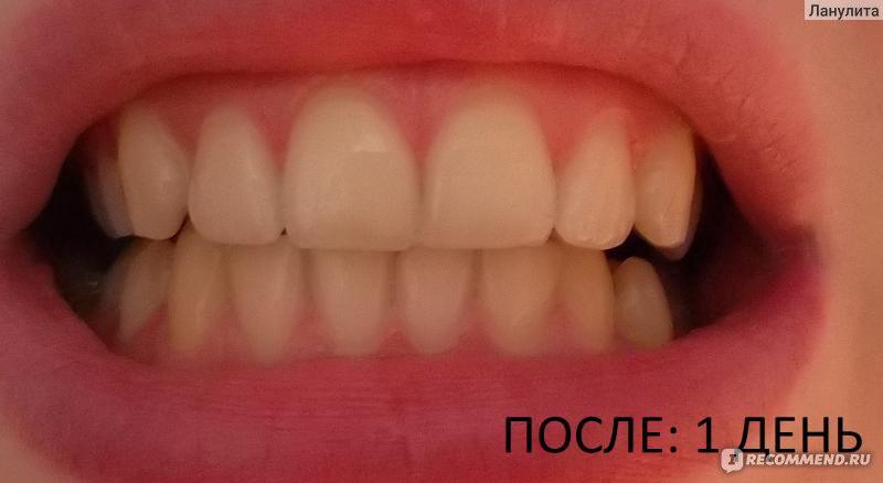Как отбелить зубы перекисью водорода в домашних