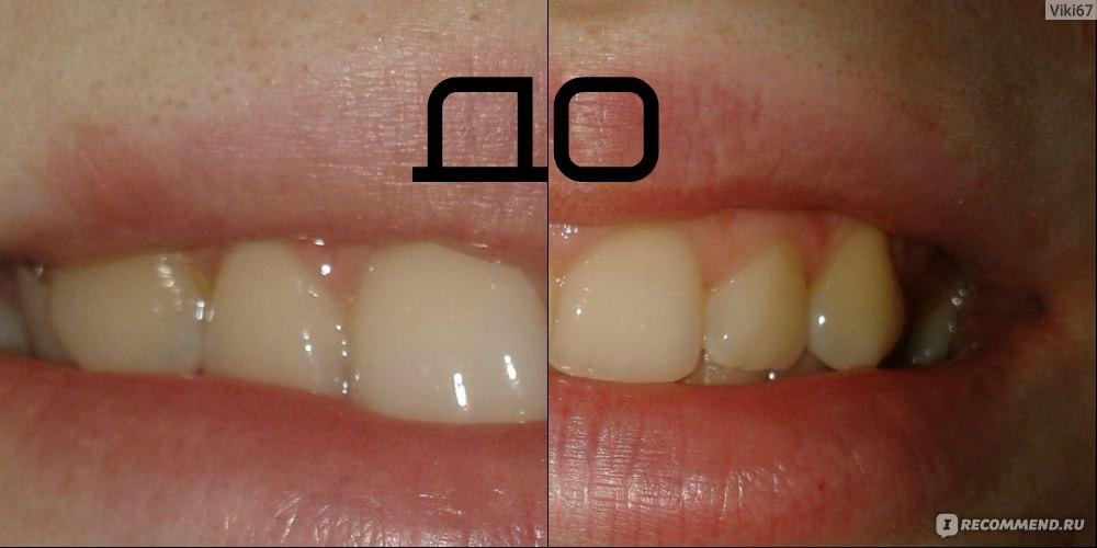 отбеливание зубов пищевой соды перекиси водорода