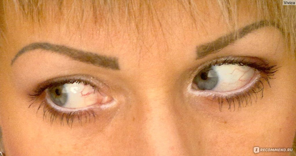 Почему слезятся глаза? Причины слезоточивости и