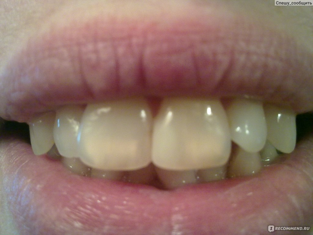 Отбеливание зубов диодным лазером  Стоматология.